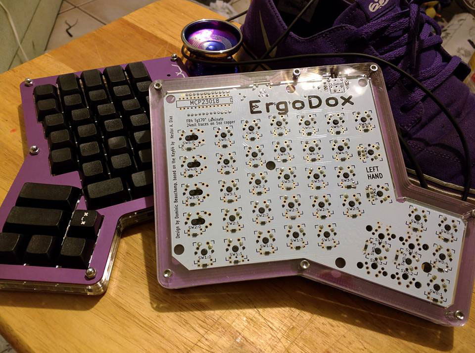 My complete Ergodox, showing off the underside of the case.